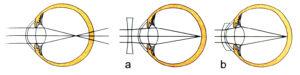 Corrección de la miopía mediante el uso de lentes; a) Lentes divergentes b) Lentes de contacto.