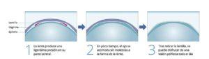 Funcionamiento lente Ortok
