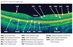 Es importante que los profesionales nos hagan un diagnóstico, a través de exámenes oftalmológicos periódicos.