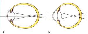 a) Ojo miope por miopía axial b) Ojo miope por miopía de curvatura o de índice