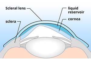 Lente escleral 2