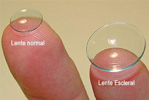 Comparación de lentes