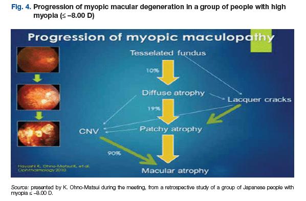 Gráfico de progresión de la DMM en grupo de personas con alta miopía